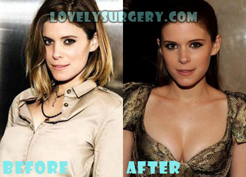 Kate Mara Plastic Surgery Breast Implant