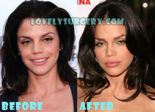 Vanessa Ferlito Plastic Surgery Nose Job