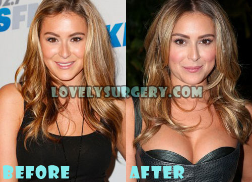 Alexa Vega Plastic Surgery Breast Implant