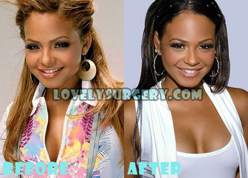 Christina Milian Plastic Surgery Breast Implant
