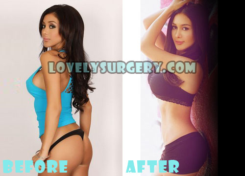 Joselyn Cano Plastic Surgery Butt Implant