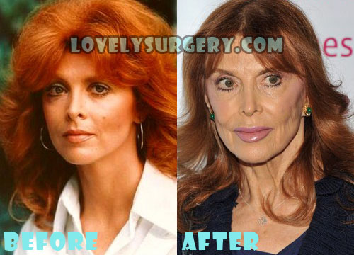 Tina Louise Plastic Surgery Botox Gone Wrong