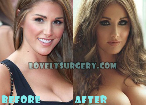 Lucy Pinder Plastic Surgery