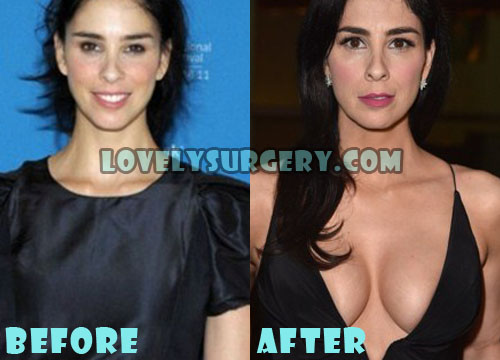 Sarah Silverman Plastic Surgery Boob Job