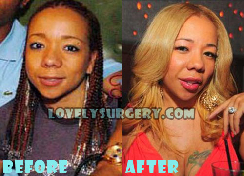 Tameka Cottle Plastic Surgery Lip Injection