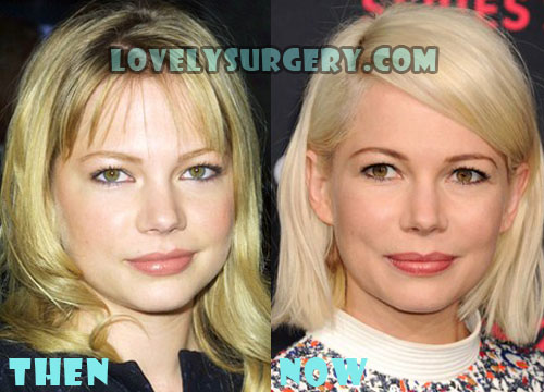 Michelle Williams Plastic Surgery Botox